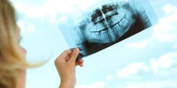 TC Odontoiatrica Cone Beam